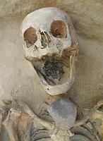 Una mujer de 45 a 49 años, con una piedra en la garganta - Gregoricka et al